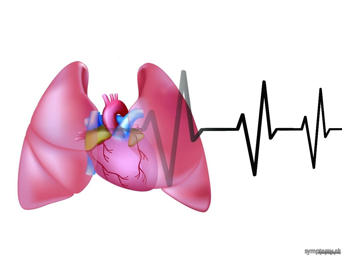 Ako spoznať srdcové zlyhanie