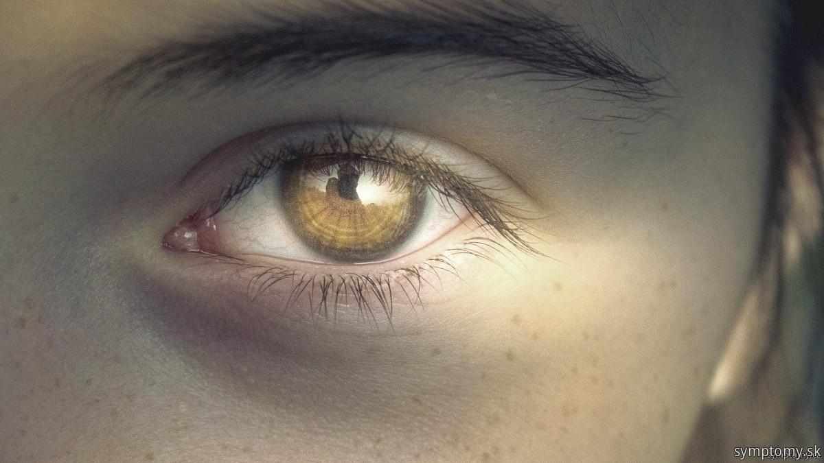Akútny glaukómový záchvat