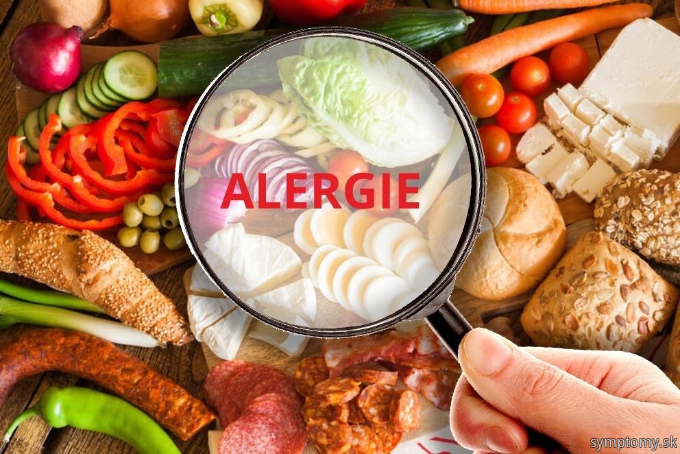 Potravinova alergia