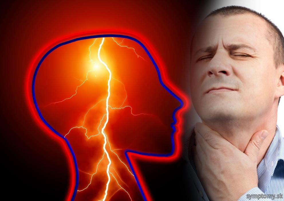 Amyotrofická sklerozy