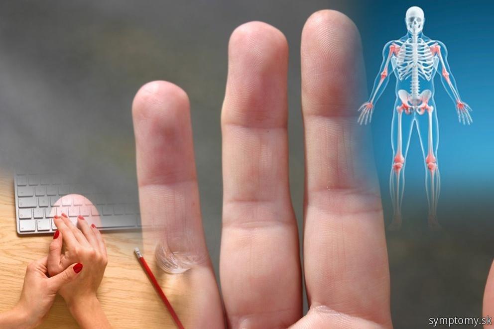 Priznaky artropatie