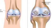 Artróza kolenného kĺbu