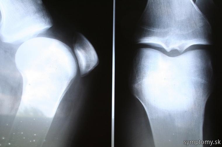 Artritida kolena