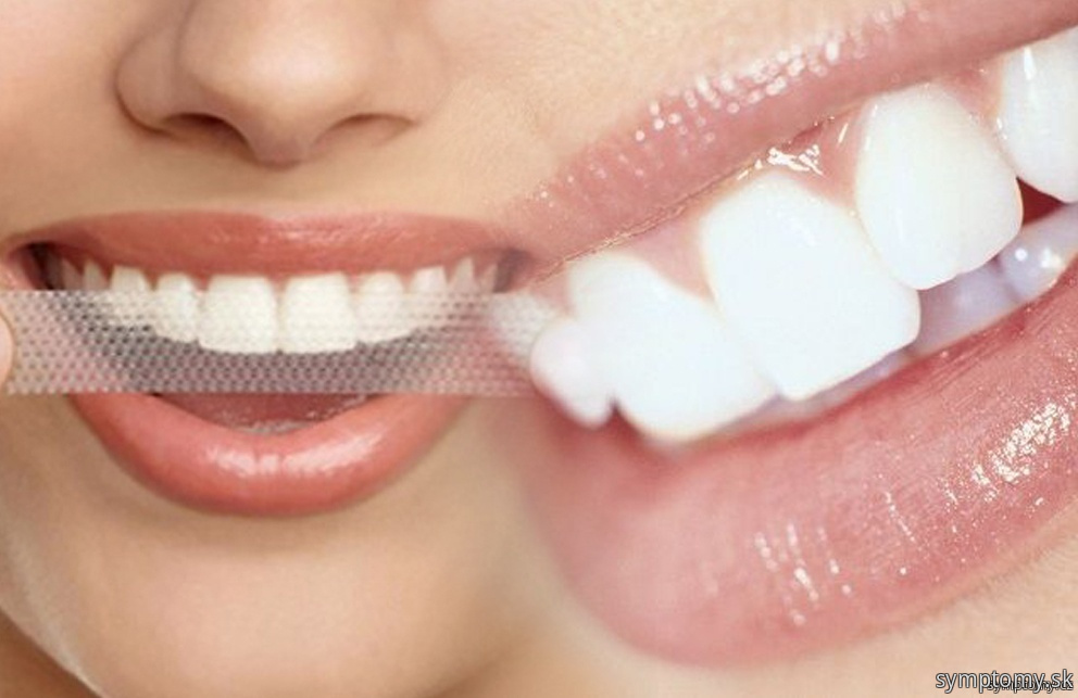 Pásky na bielenie zubov