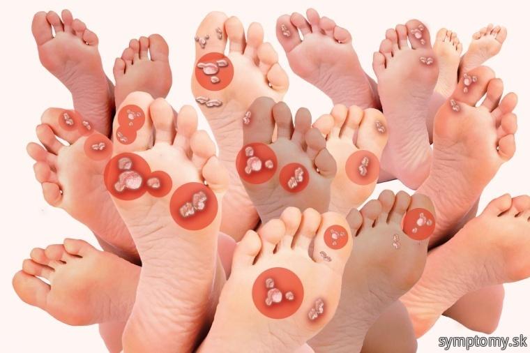Bradavice na nohe