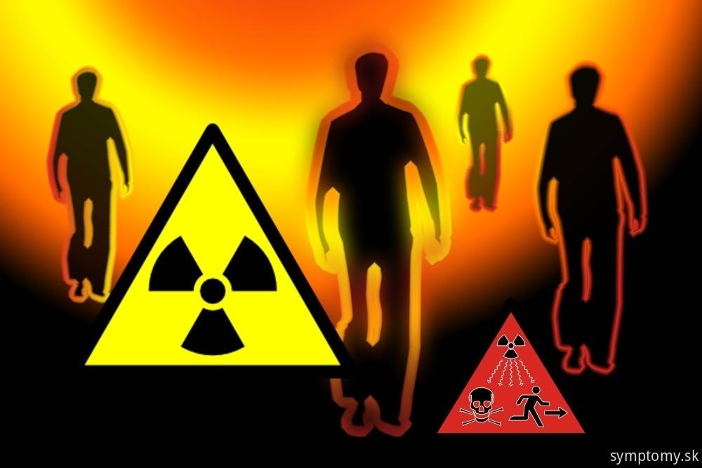 Akútny radiačnej syndróm