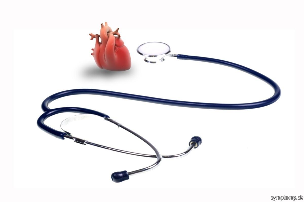 Srdcová arytmia