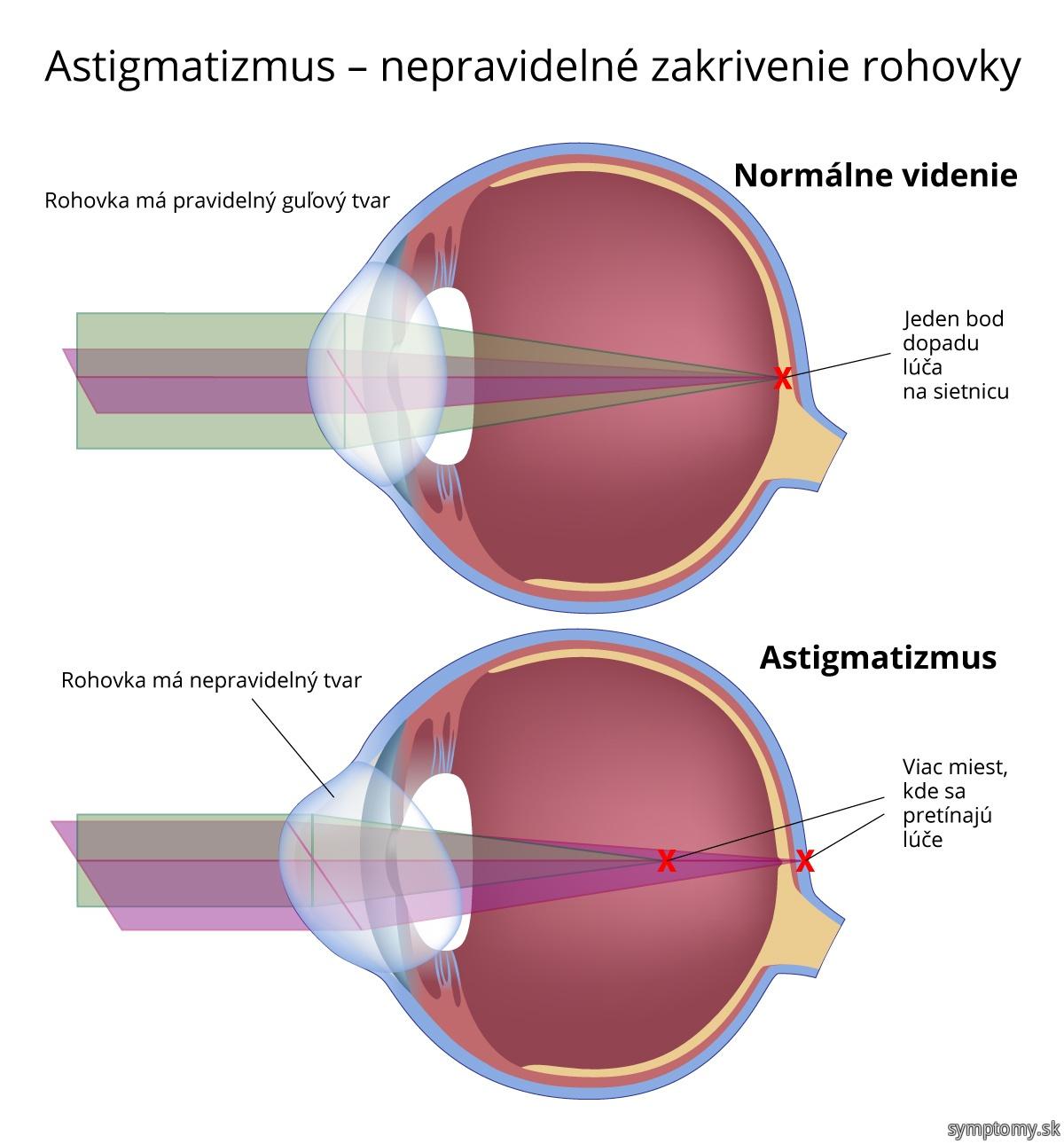 Astigmatismus - nepravidelné zakrivenie rohovky