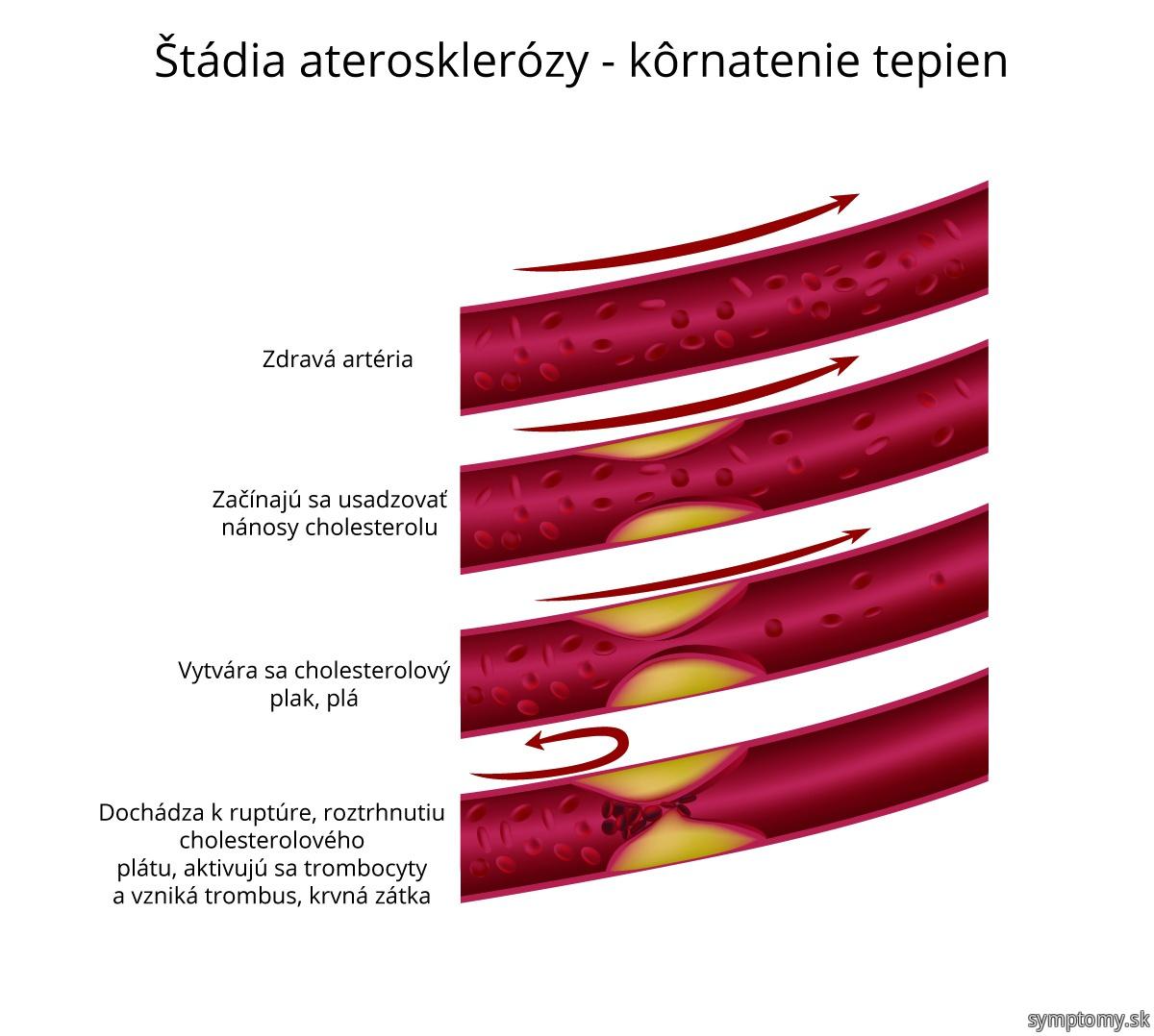 Štádia aterosklerózy - kôrnatenie tepien