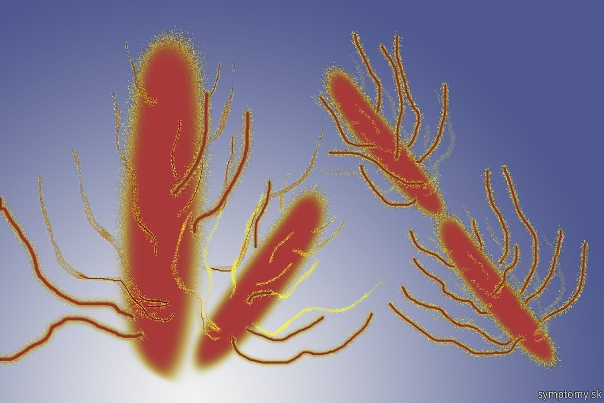 Baktérie Salmonella typhi Brušný tyfus