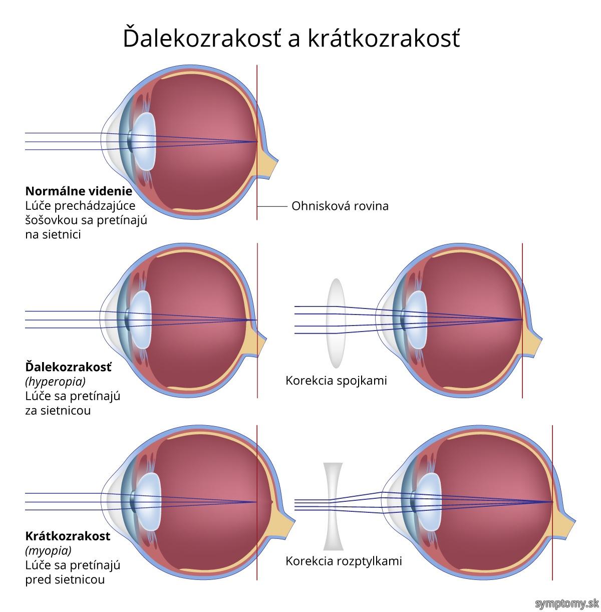 Ďalekozrakosť a krátkozrakosť