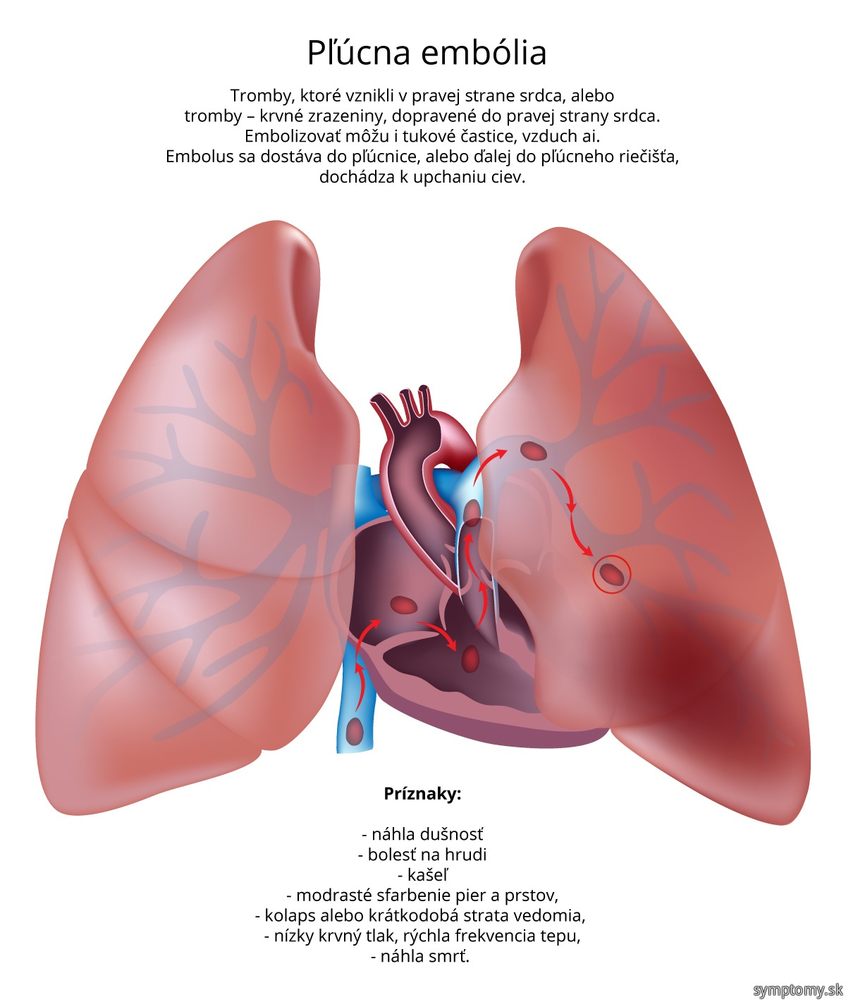 Pľúcna-embólia