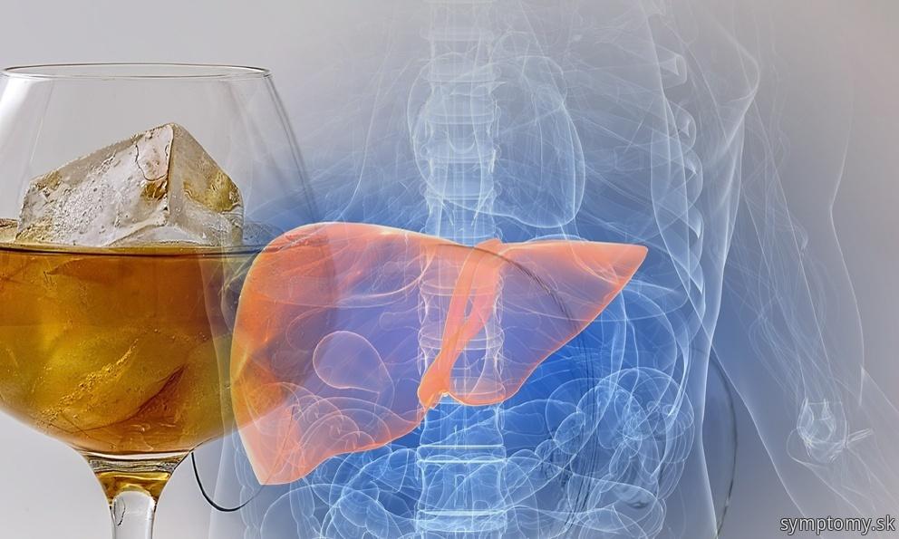 Pečeň postihnutie nadužívaním alkoholu