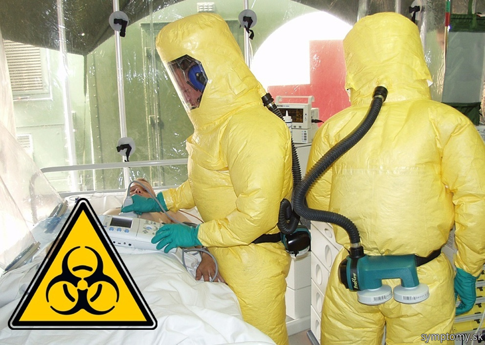 Infekčné onemocnenia baktériu Yersinia pestis-mor