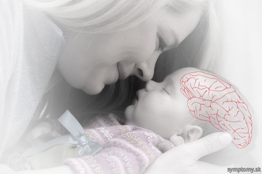Detska mozgová obrna dmo