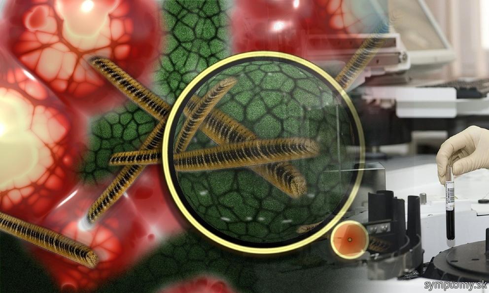 Mykoplazmy atypické bakterie