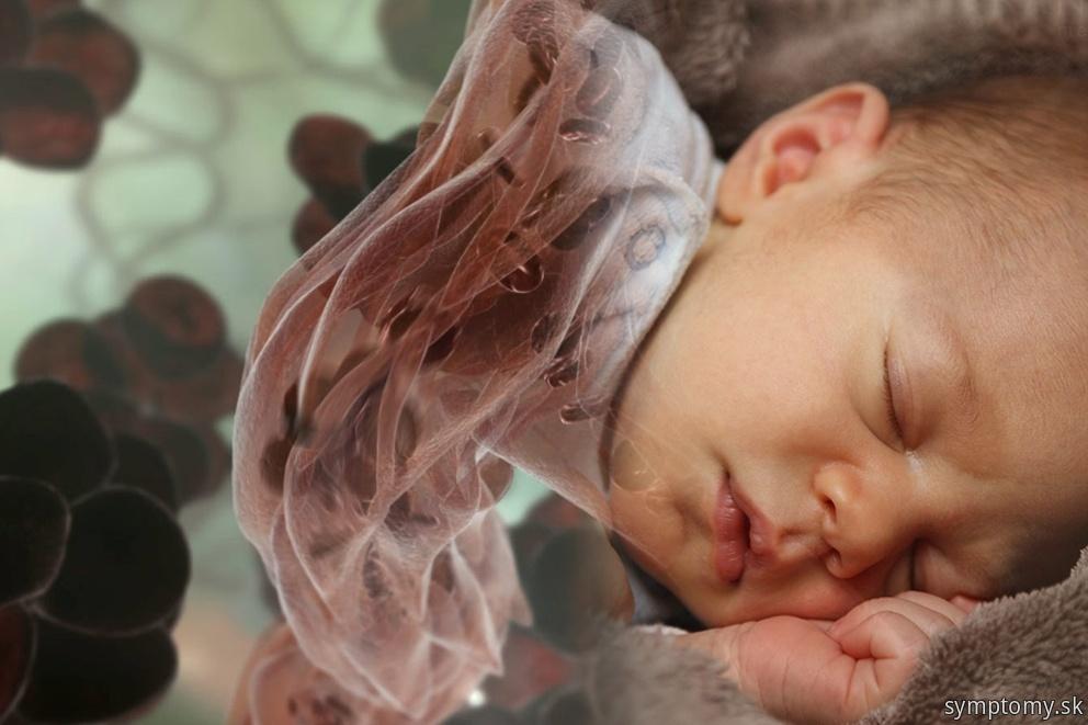 Žltačka u novorozencu