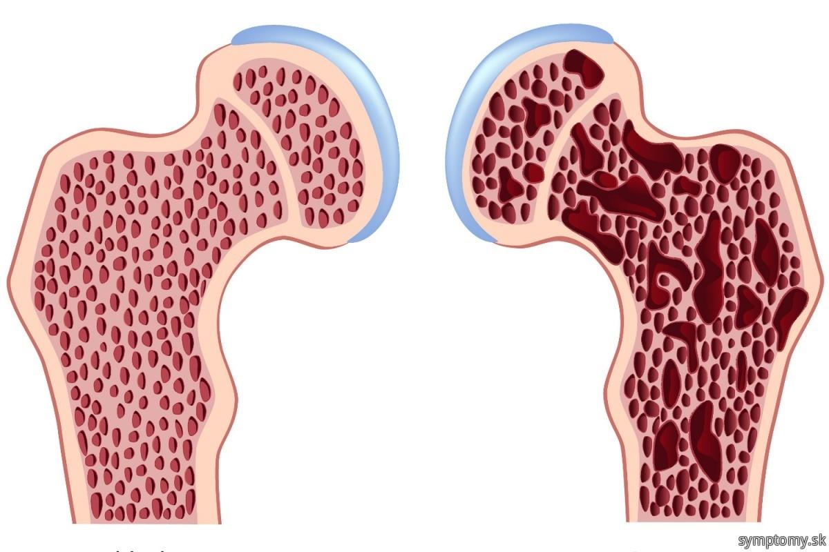Rednutie-kosti-osteoporoza