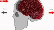 Otras mozgu