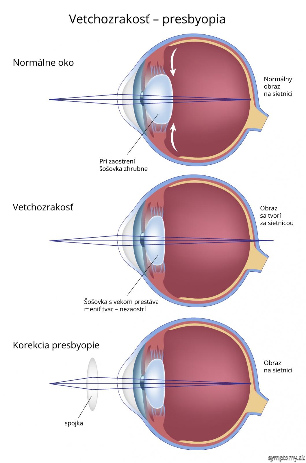 Vetchozrakosť---presbyopie
