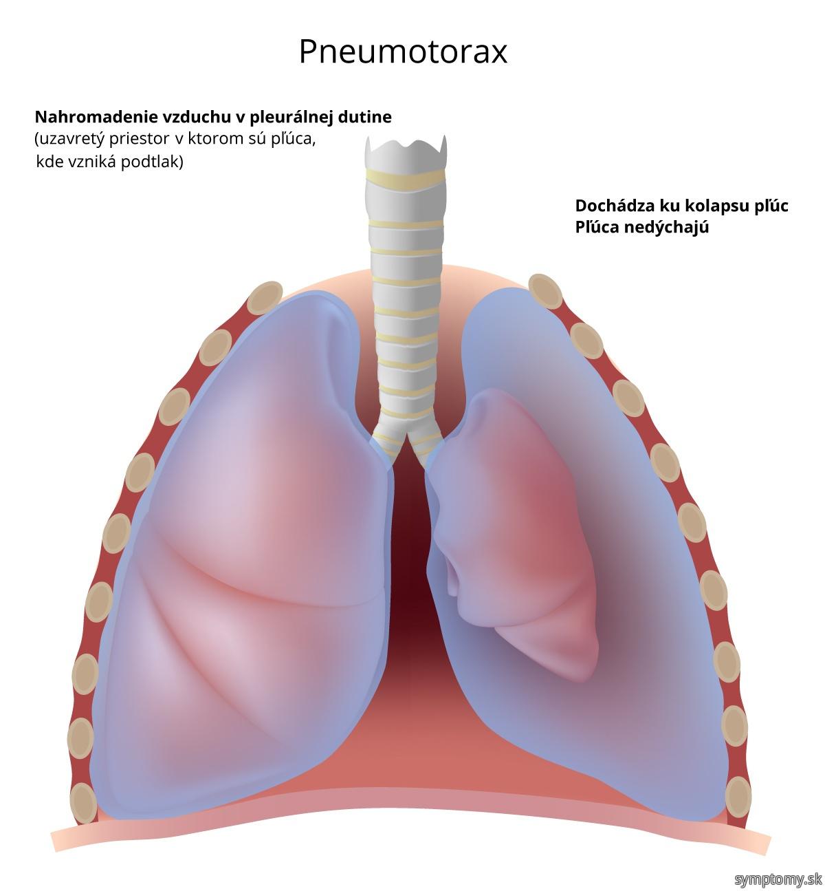 Pneumotorax---nahromadenie-vzduchu-v-pleurálnej-dutine