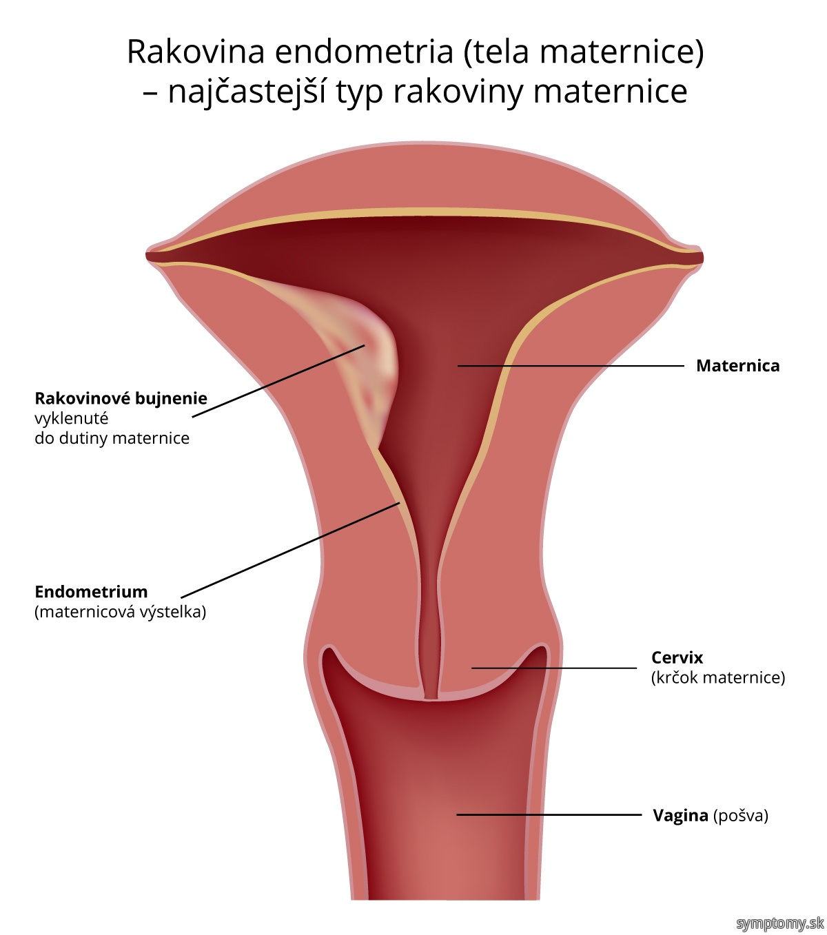 Rakovina-maternice