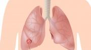 Rakovina pľúc