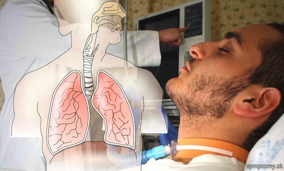Tezky Akútna respiračné syndróm-syndróm náhleho zlyhanie dýchanie-sars