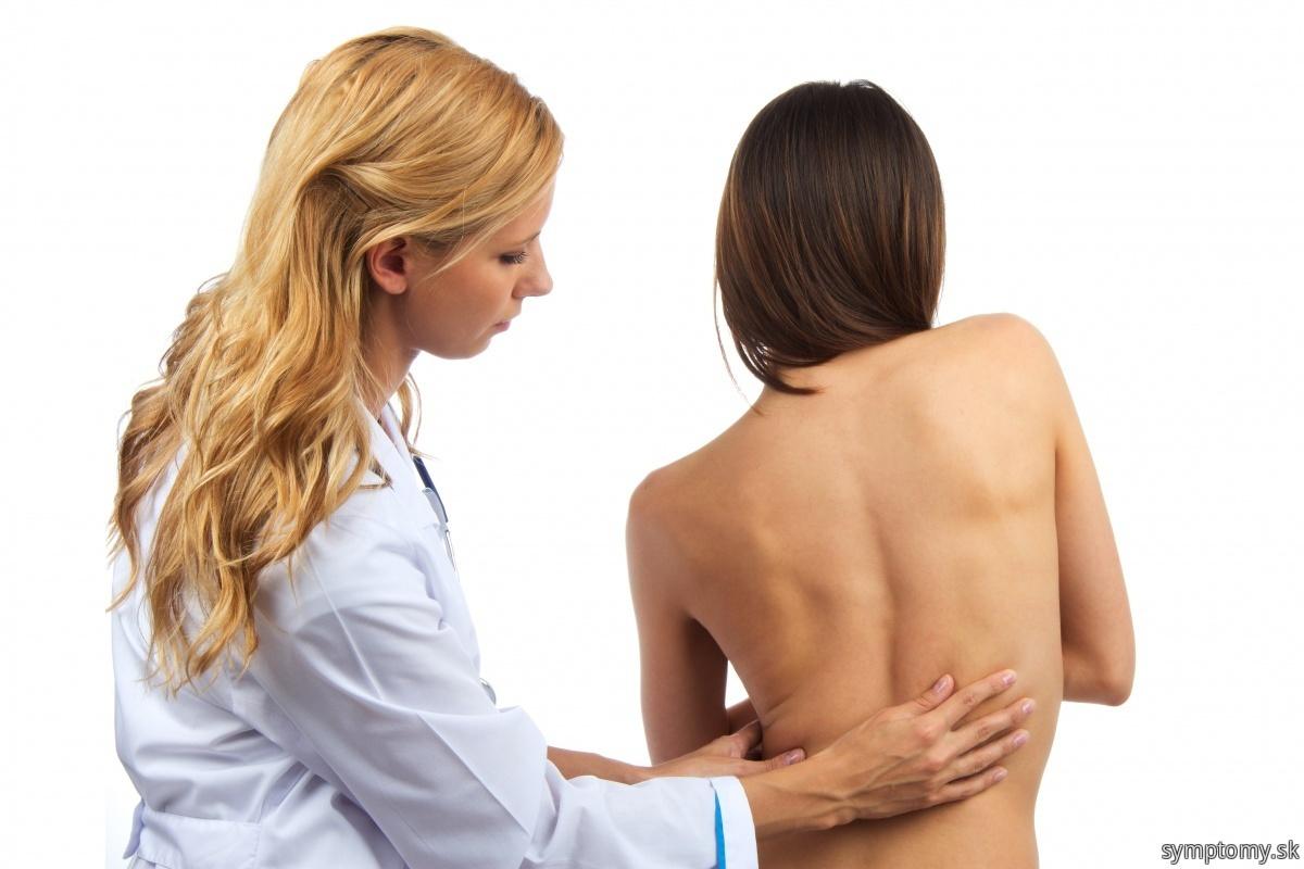 Vychýlenie-chrbtice-do-strany