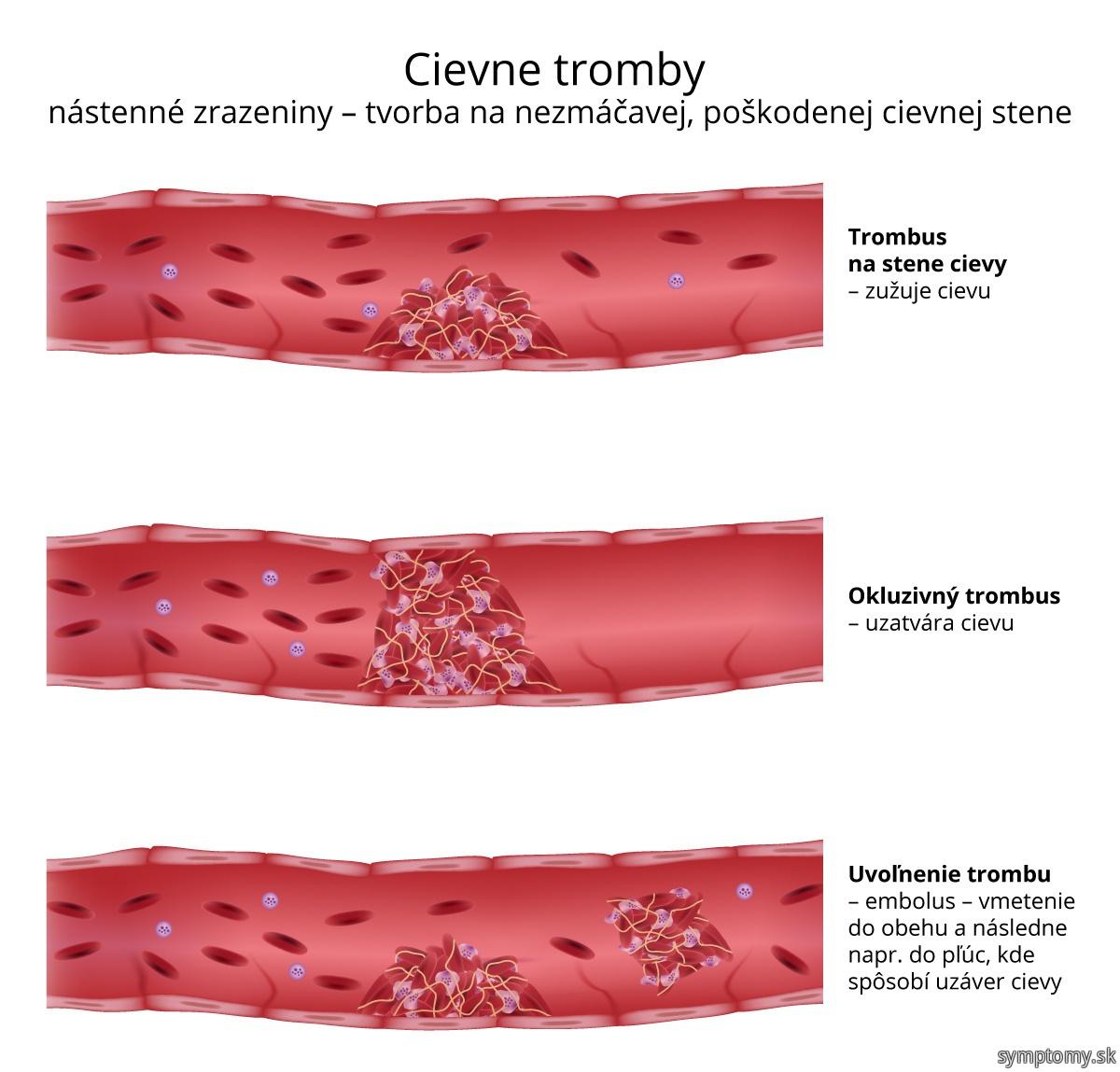 Cievne-tromby-trombóza