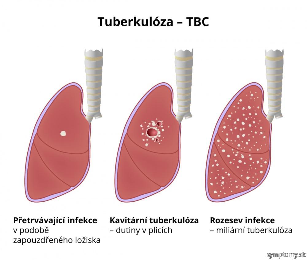 Tuberkulóza (TBC)