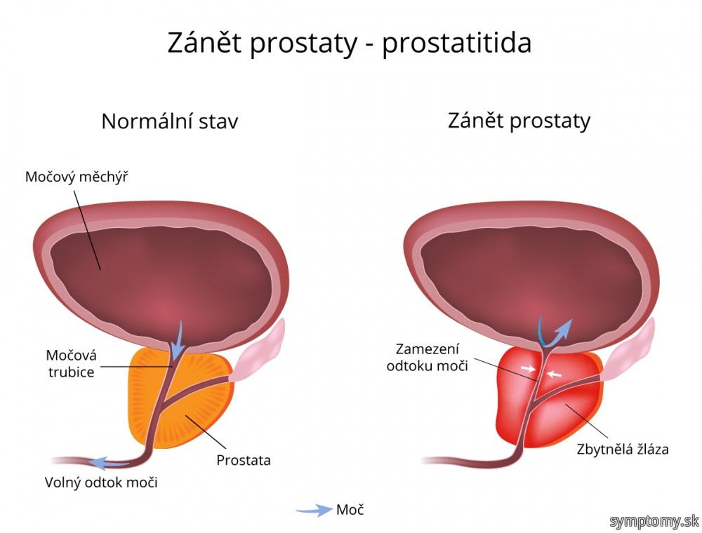 Zápal prostaty (prostatitída)