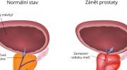 Zanet prostaty