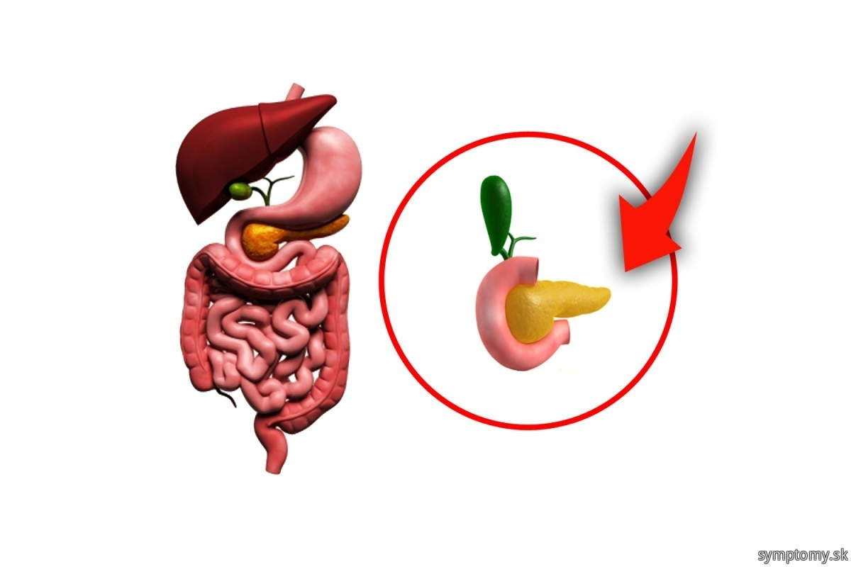 Infekcie-pankreasu-brisni
