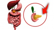 Zápal pankreasu