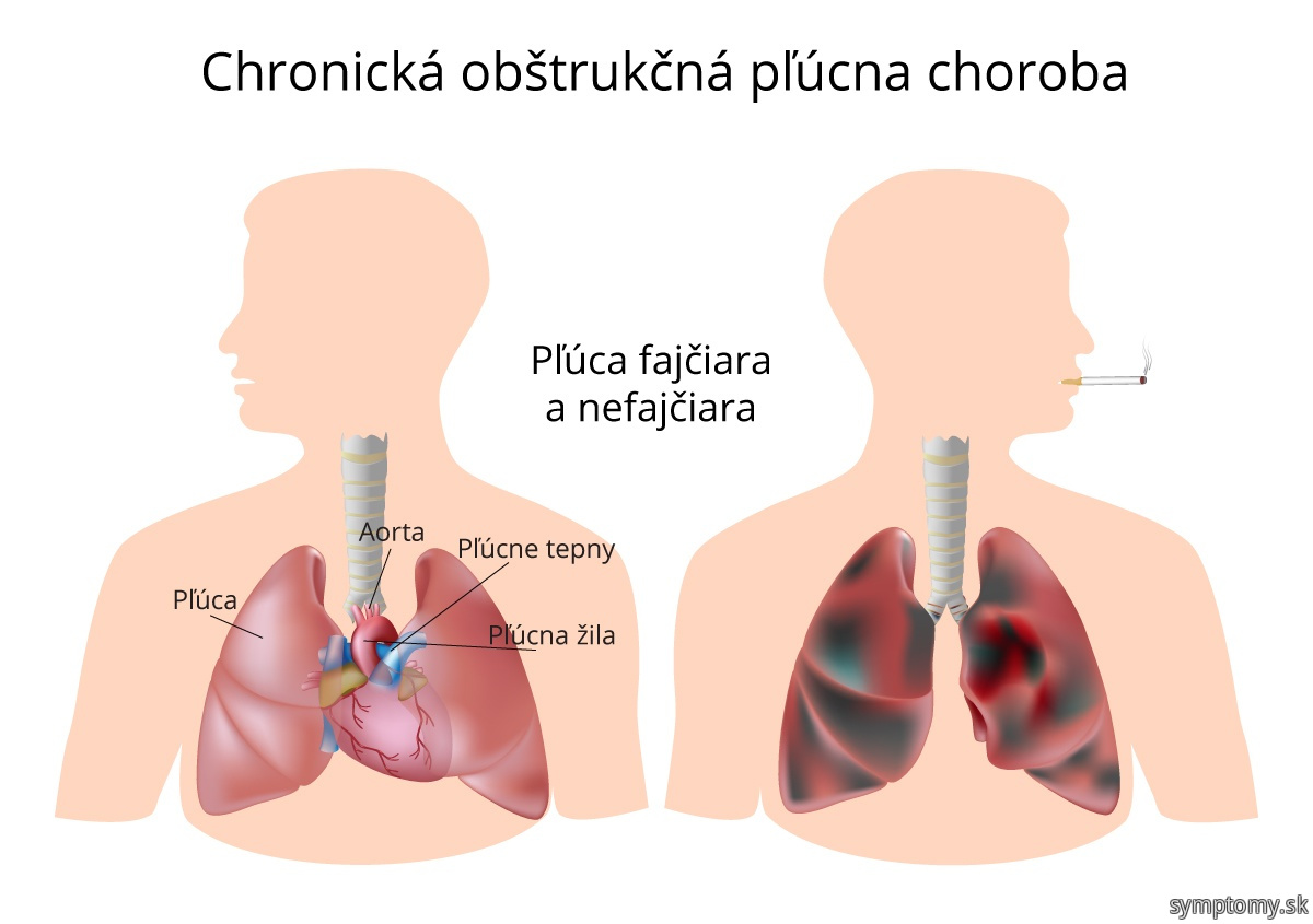 Pľúca fajčiara a nefajčiara