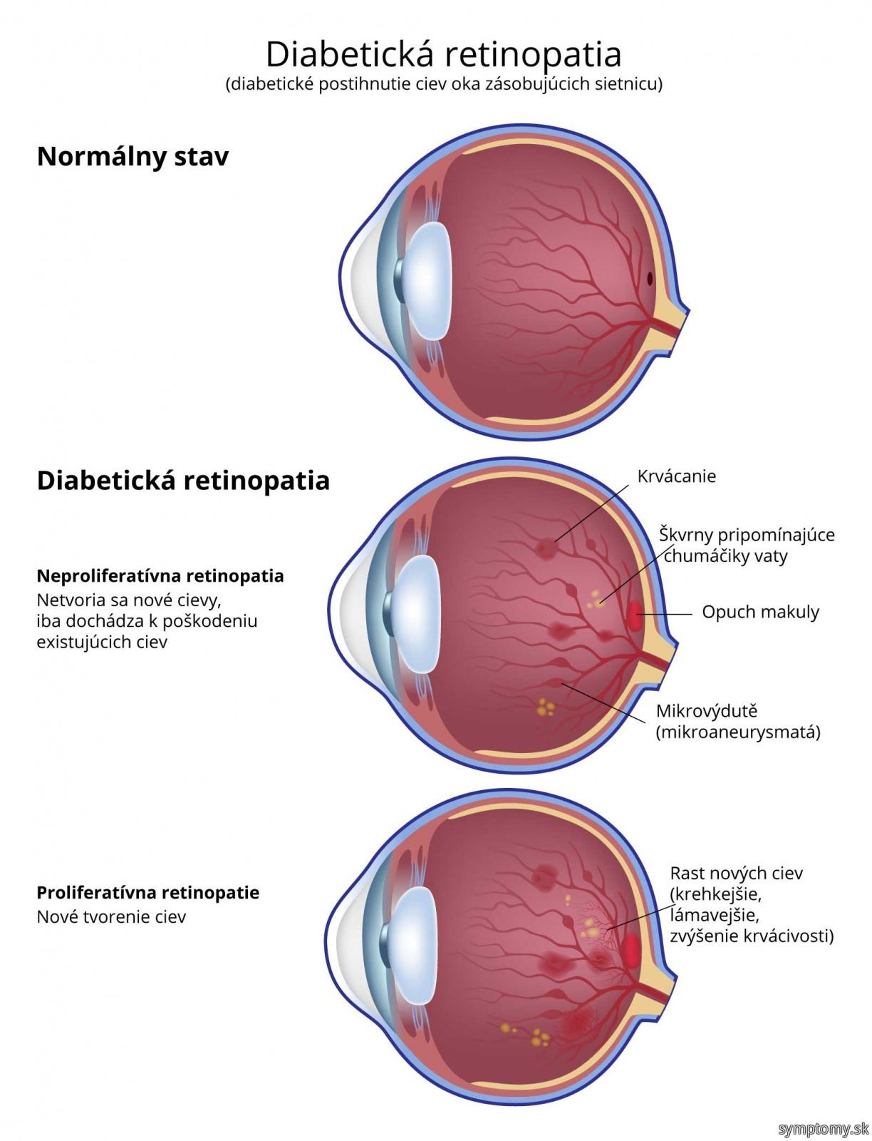 Diabetická retinopatia