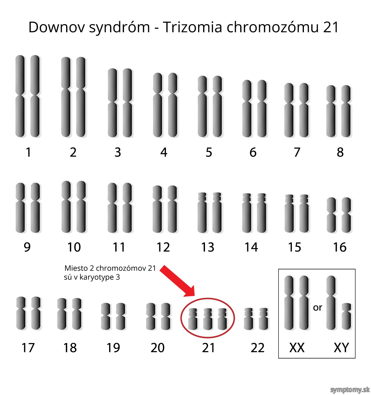 the down syndrome analysis of the disease symptoms and what we can do about it Down syndrome is a genetic condition caused by extra genes from the 21st chromosome it results in certain characteristics, including some degree of cognitive disability and other developmental delays.
