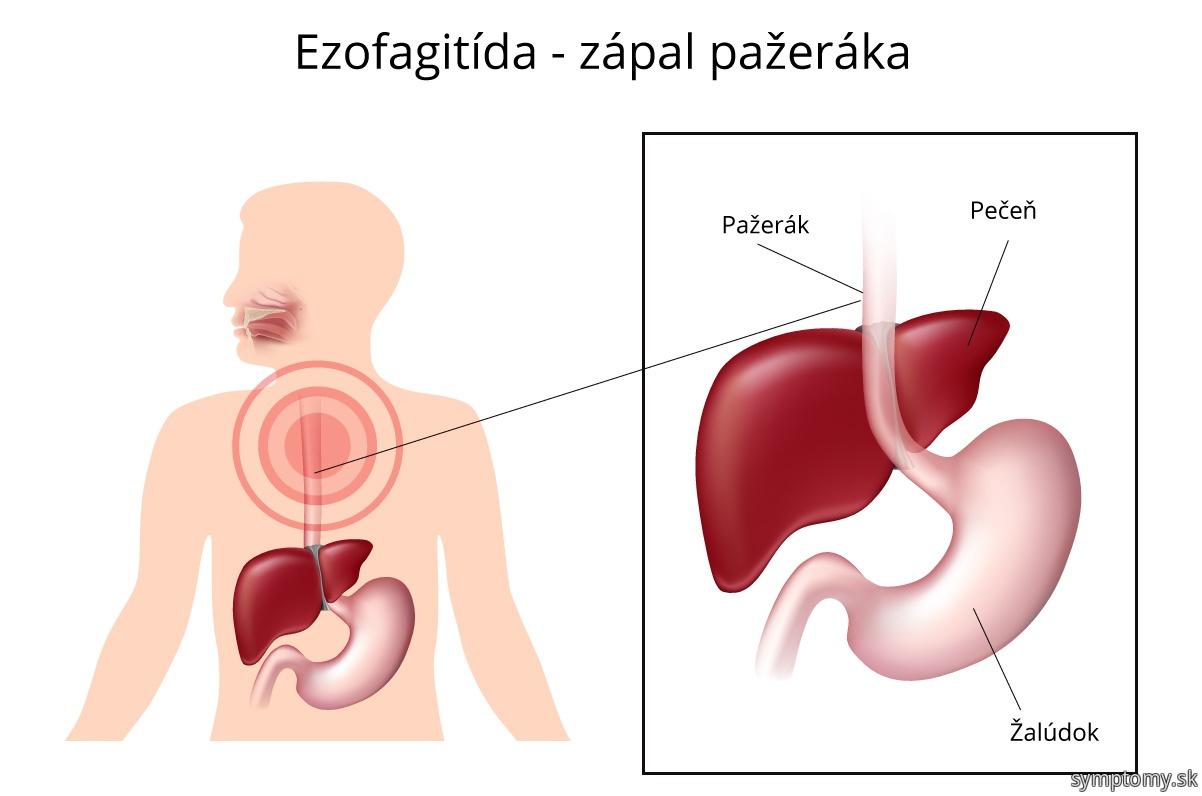 Ezofagitída