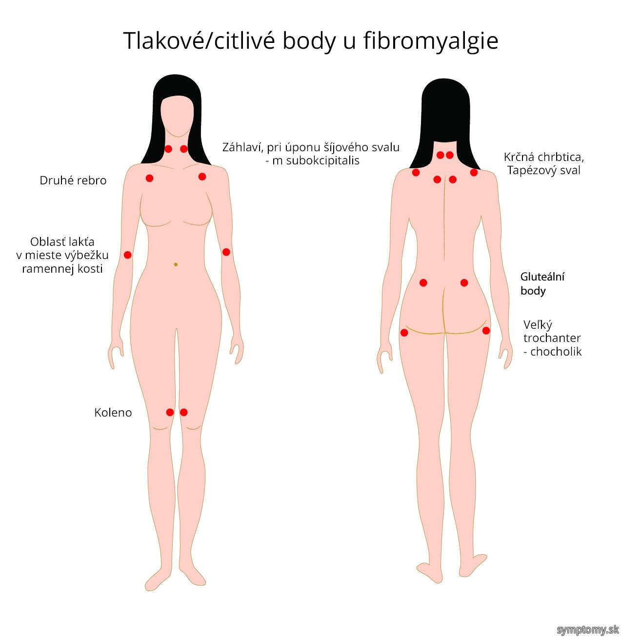Tlakové - citlivé body u fibromyalgie