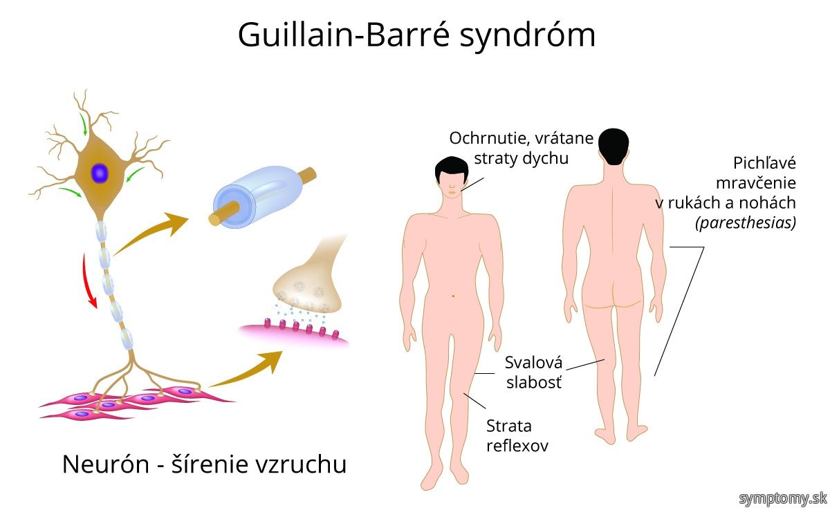 Guillain-Barré syndrom