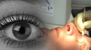 Laserové operácie očí