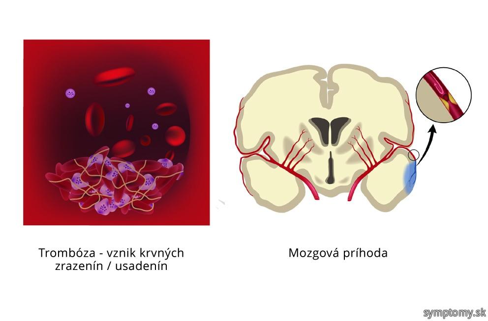 Leidenská% A0 mutácie