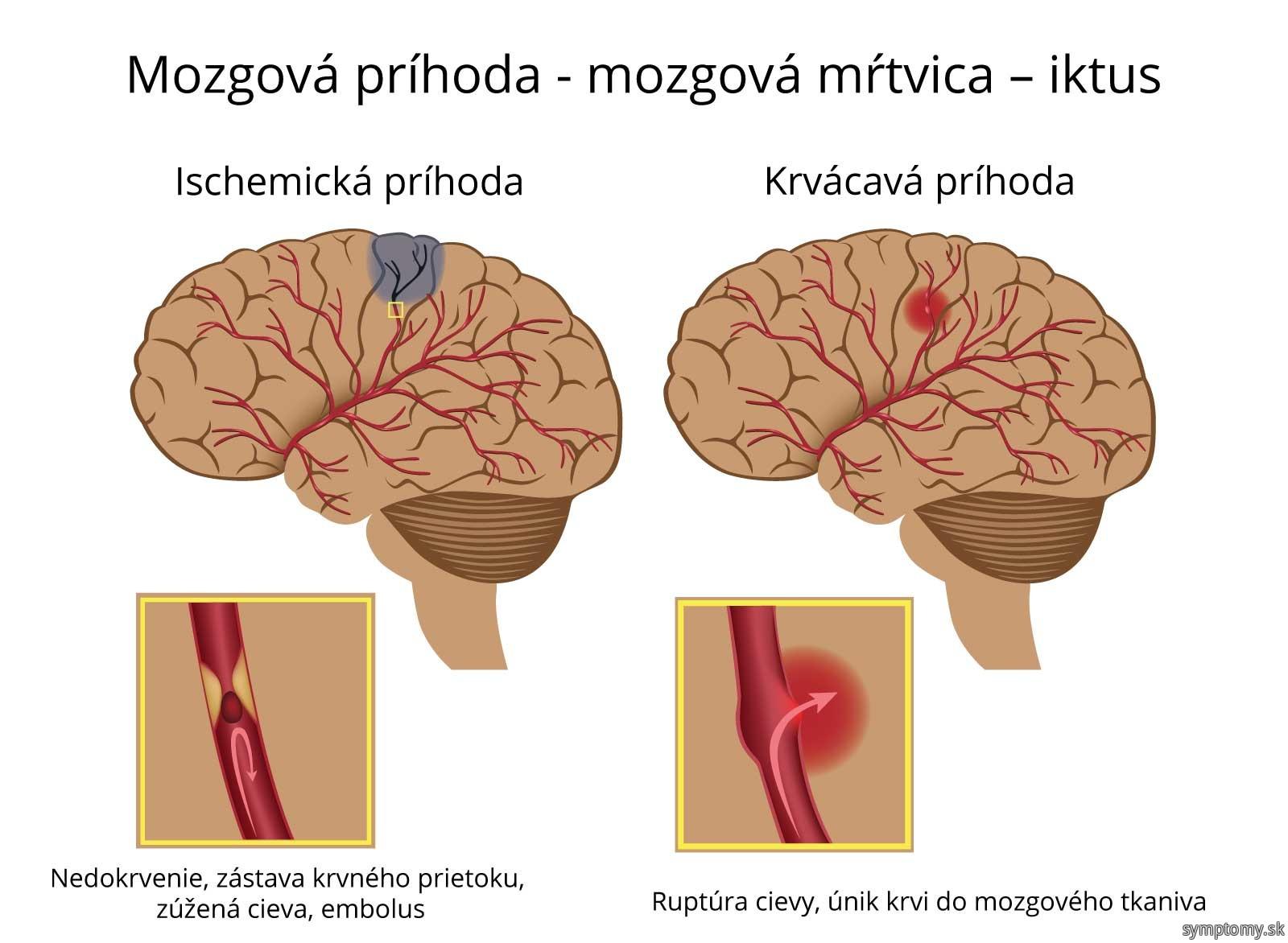 Mozgová príhoda.jpg