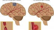 Mozgová príhoda