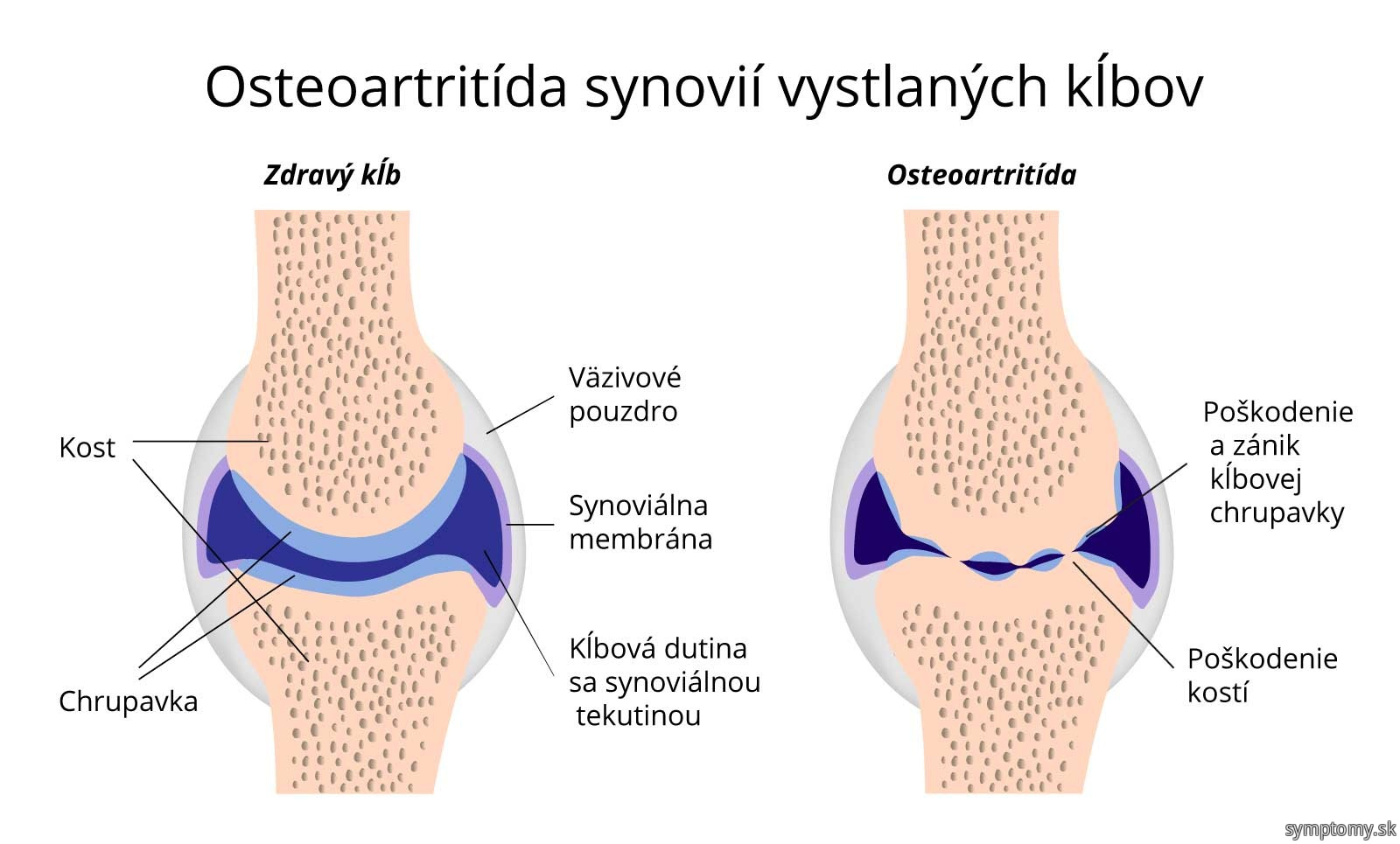 Osteoartritída synovií vystlaných klbov.jpg