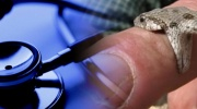 Otravy hadím uštipnutím
