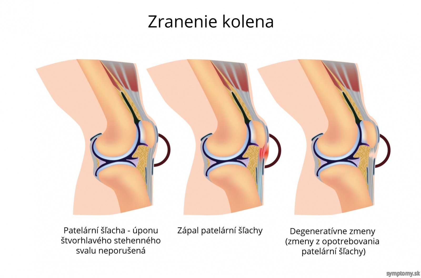Zranenie kolena