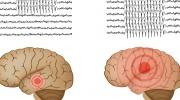 Epilepsie - grafoelementy
