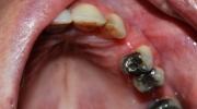 Zubný kaz